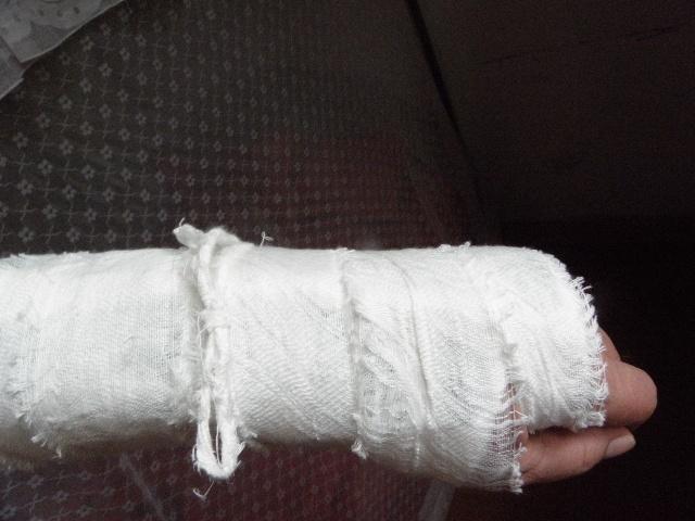 割腕 伤口包扎,,割腕包扎(第9页)_点力图库