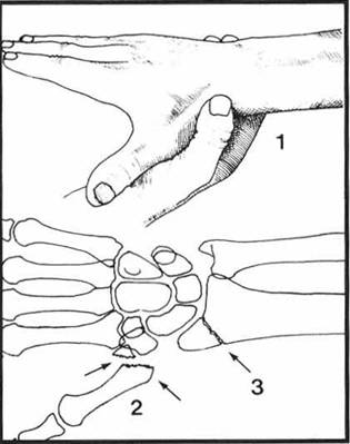 手大拇指肌腱结构图